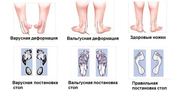 130aad987 Вальгусная и варусная деформация стопы: причины нарушений и их ...